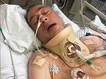 Victoria Police: Huge $11.75million payout after man is left paralysed