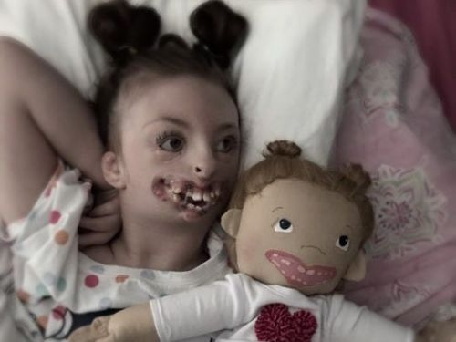 A former Wisconsin social worker makes custom dolls for children with physical differences so they can finally 'see how beautiful they are'