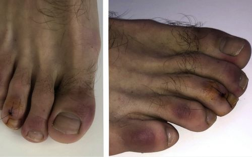 Covid toes: People infected with coronavirus may develop red and swollen feet that turn purple