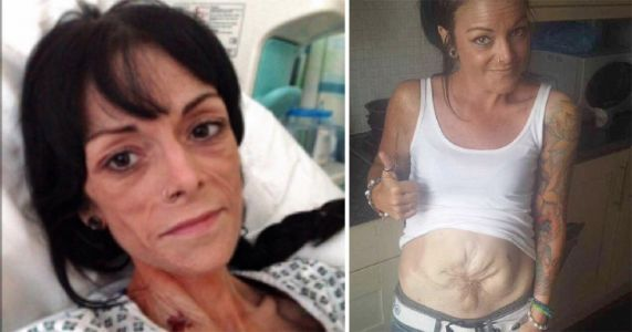 Mum to have 'most difficult operation in world' with seven-organ transplant
