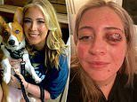 Girl went to get her eyelashes done only for entire EYELID to be TORN OFF by lash technician's dog